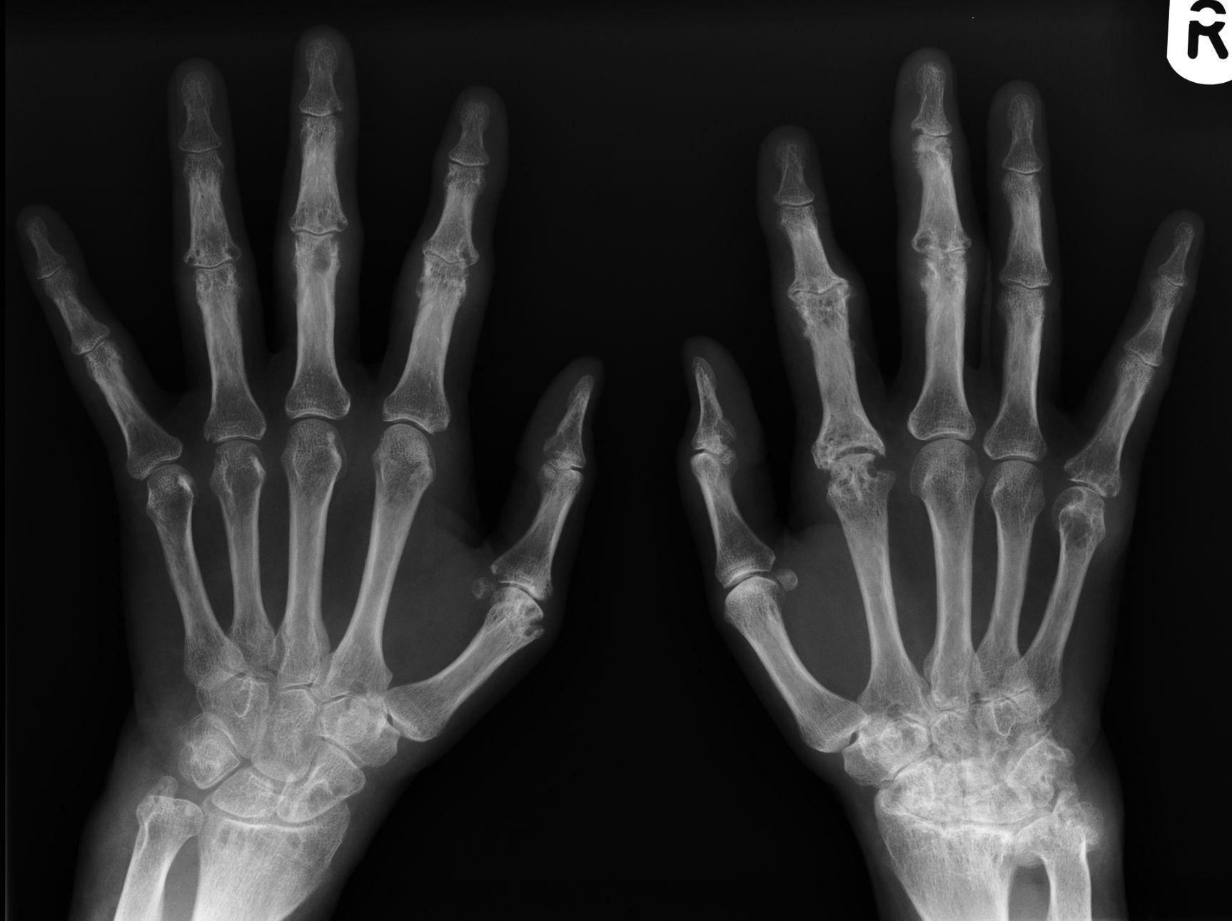 De cómo poner la artritis reumatoide en remisión -- Salud y ...