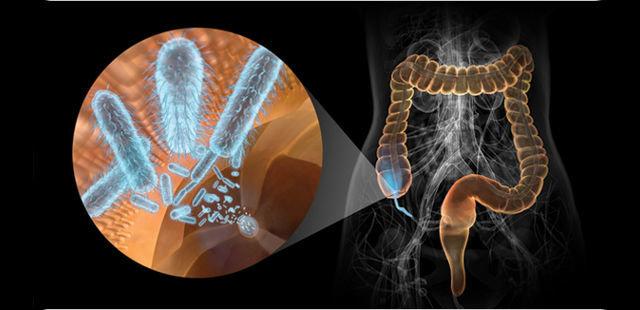 Resultado de imagen de microbios intestinales y esclerosis múltiple