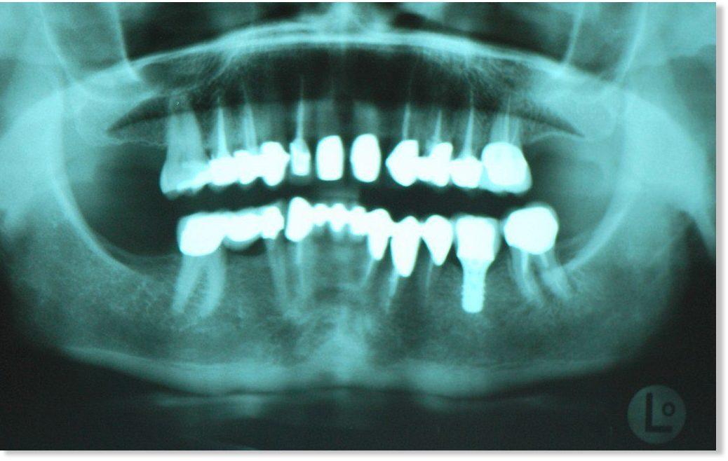 Científicos advierten del peligro del titanio en productos como la ...