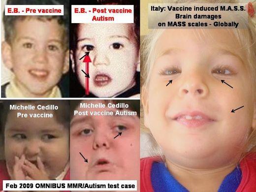 vacunas 5