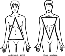 Quiebra las manos la osteocondrosis