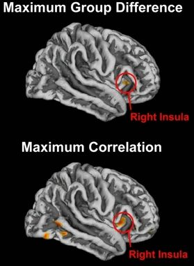 Los círculos en rojo indican dónde se produjo el máximo efecto de la meditación en el cerebro. Imagen superior: Mayor girificación de las personas que meditaban, en comparación con las personas que no lo hacían. Imagen inferior: Relación positiva entre la