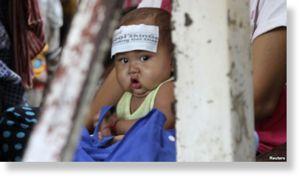 epidemia infantil en Camboya