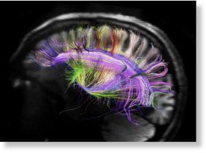 cerebro con colores