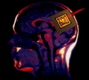 microchip_cerebral