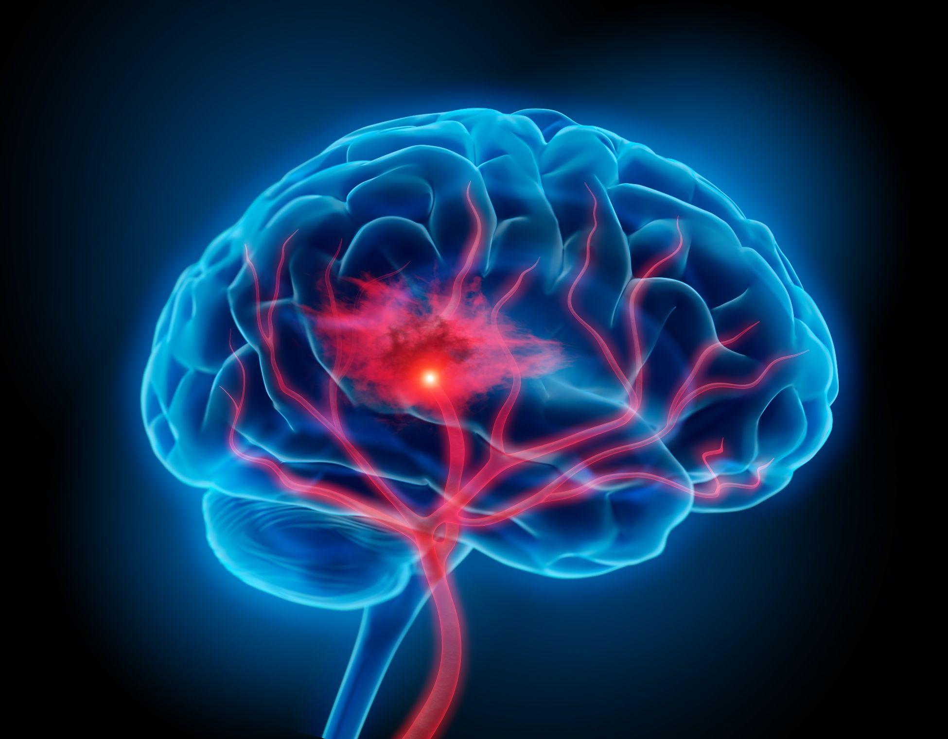 Su cerebro está inflamado? ¡Estimule el nervio vago y reduzca el ...