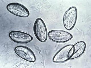 parasitos raros en humanos