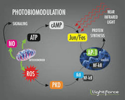 photobiomodulation, near infrared therapy
