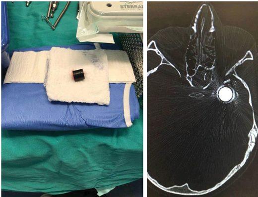Mohammed Tamimi bullet CAT scan