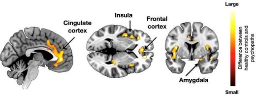 Brain basis for psychopathy